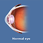Allergic Disorders of the Eye
