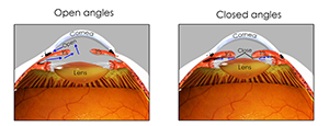 Open and Closed Iridocorneal Angles