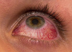 Uveitis and Ocular Inflammation